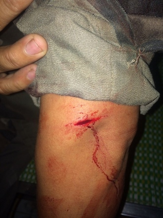 Vết chém sâu trên cánh tay 1 nạn nhân