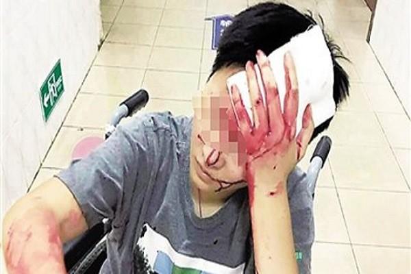 Xiao He bị đánh chảy máu đầu