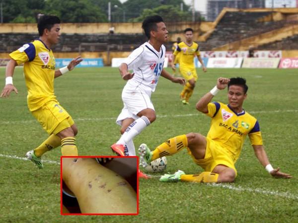 Sự thô bạo đang giết chết bóng đá ảnh 1