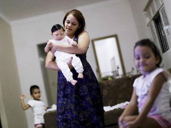Một bé gái 4 tháng tuổi bị tật đầu nhỏ ở Brazil