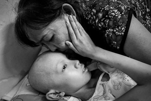 Xúc động người mẹ bán xôi và đứa con nuôi bị ung thư ảnh 1