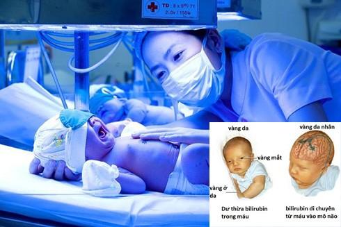 Hậu quả nghiêm trọng khi không điều trị vàng da cho trẻ