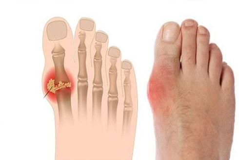 Chế độ ăn kiêng cho người bệnh gout