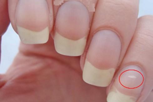 Nếu xuất hiện đốm trắng trên móng tay có thể cảnh báo cơ thể thiếu hụt một số yếu tố vi lượng