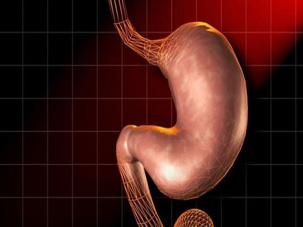 Xét nghiệm hơi thở có thể phát hiện nguy cơ ung thư dạ dày ảnh 1