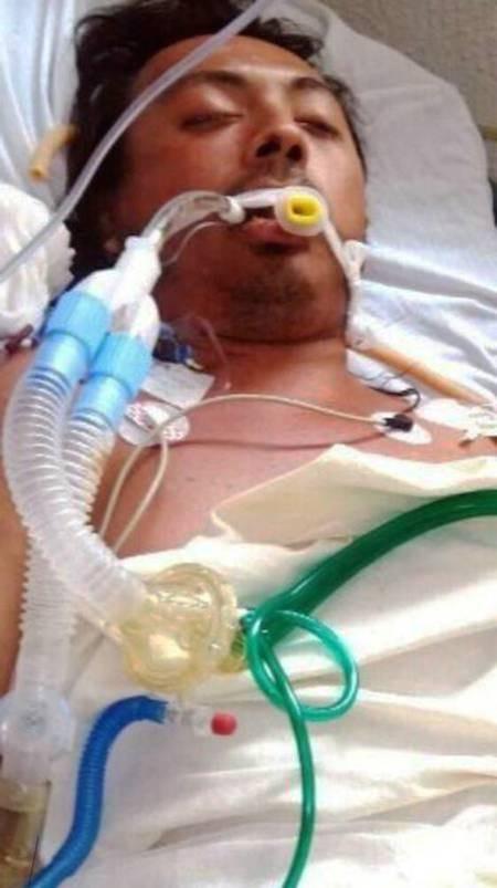 Người đàn ông tử vong do tiêm dầu ăn để nâng ngực ảnh 1