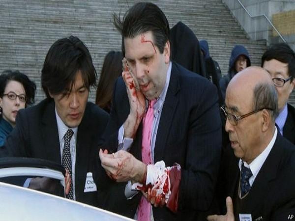 Đại sứ Mỹ Mark Lippert được đưa đến bệnh viện để điều trị viết thương
