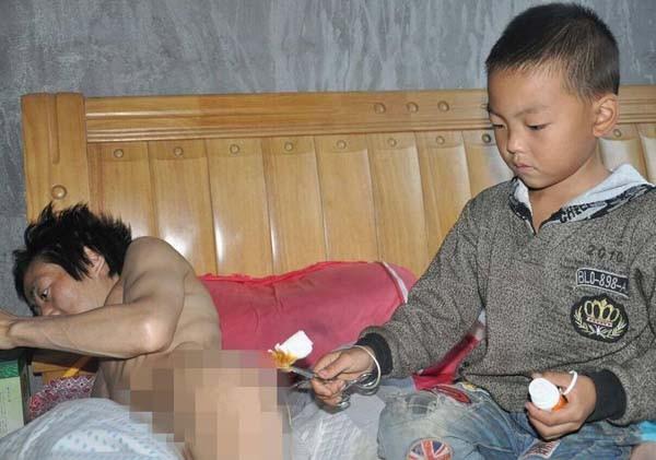 Cậu bé bôi thuốc chống viêm loét cho cha