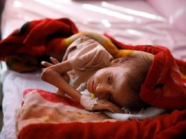 Một em bé bị suy dinh dưỡng nặng do đói ăn