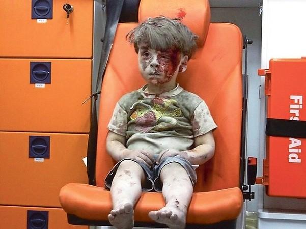 """Anh trai """"cậu bé Syria"""" đã qua đời do trúng không kích ảnh 2"""