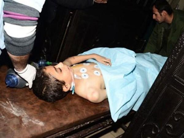 Một cậu bé bị thương trong vụ tấn công bằng đạn pháo của phiến quân ở Aleppo, ngày 5-12-2016