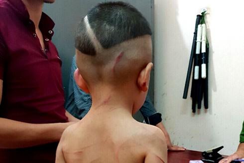 Cháu bé 3 tuổi bị cha dượng đánh gây thương tích