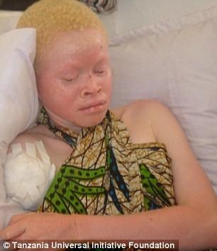 Tại Tanzania, các bộ phận cơ thể của người bạch tạng được coi là mang lại may mắn