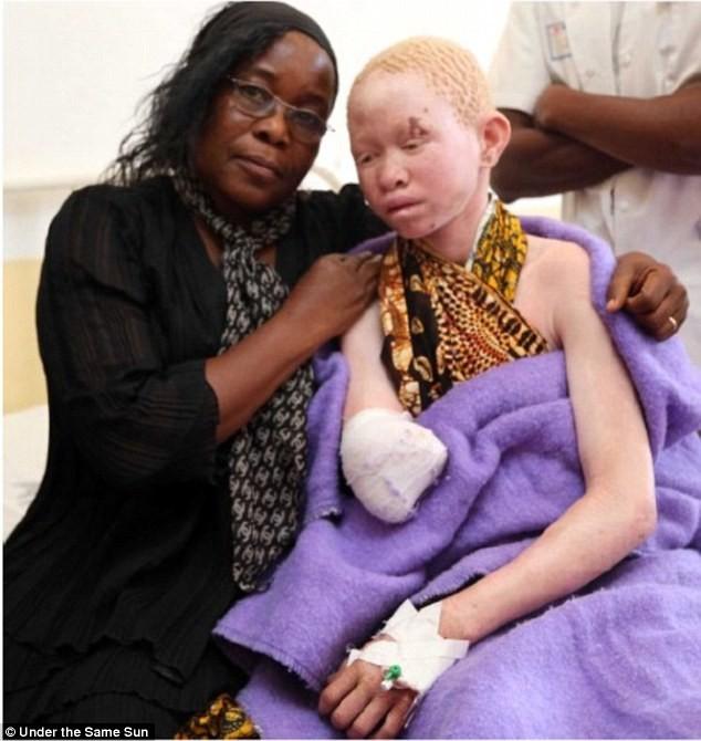 Pendo Sengerema 15 tuổi (phải) bị tấn công khi đang ăn tối cùng gia đình