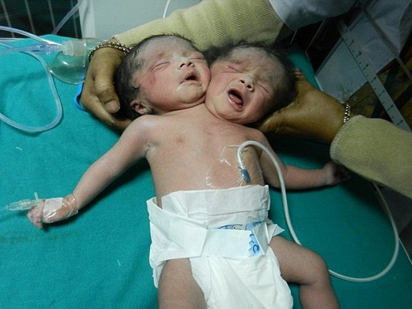 """""""Bé gái sơ sinh 2 đầu"""" ở Bangladesh ảnh 1"""
