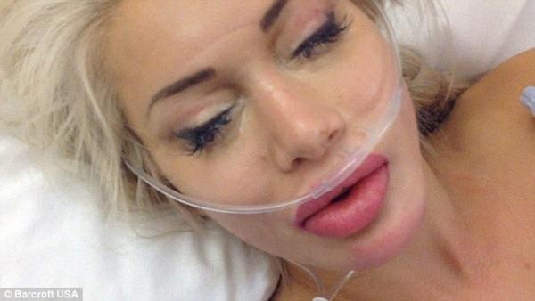 Cấy mĩ và bơm môi