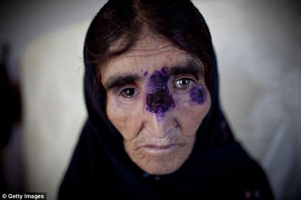 Virút Leishmaniasis để lại những vết lở loét kinh hoàng trên da