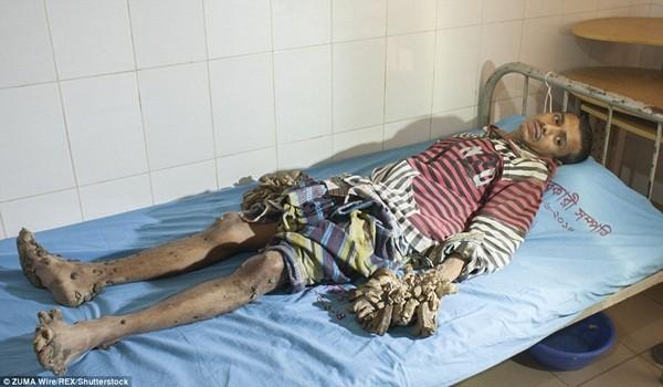 Abul đã sống chung với căn bệnh này trong 7 năm qua