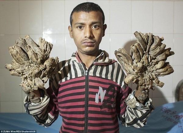 Đôi bàn tay của Abul biến dạng thành cụm rễ cây khủng khiếp
