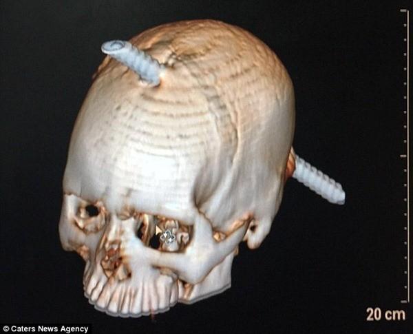 Thực tế thanh sắt đã xuyên qua vùng không có chức năng quan trọng của não nên Guddu sống sót
