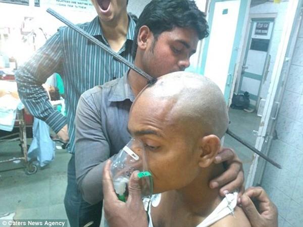 Guddu đã sống sót kỳ diệu sau tai nạn