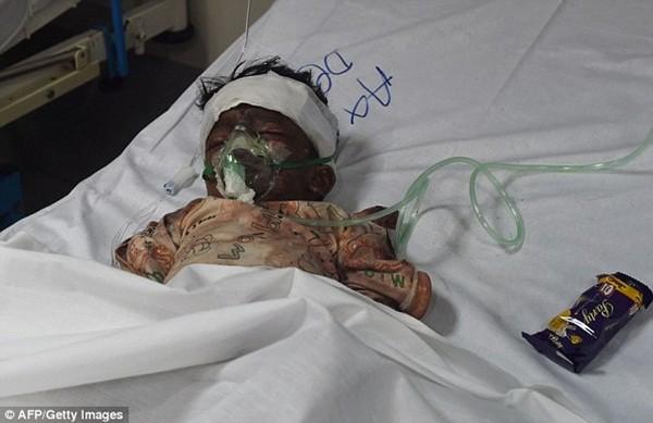Hình ảnh đau xót vụ đánh bom tự sát khiến 29 trẻ em chết thảm ảnh 2