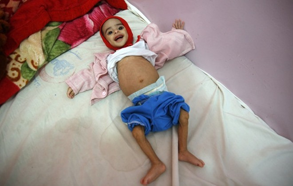Ali Abdullah, 9 tháng tuổi bị suy dinh dưỡng nặng đang được điều trị trong bệnh viện Al-Sabeen