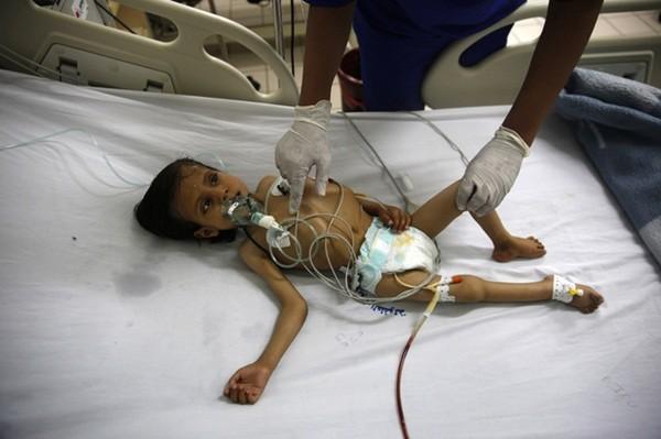Nhiều trẻ em bị suy dinh dưỡng nặng vì ăn uống thiếu thốn trong chiến tranh