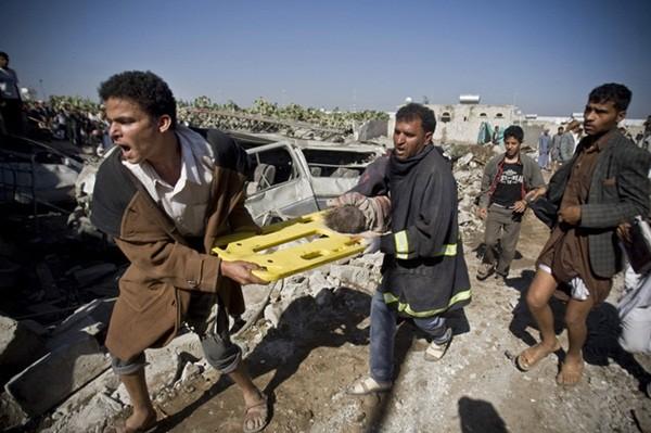 Chiến tranh khiến nhiều người rơi vào thảm cảnh đói khát khốn cùng, trong ảnh là một em bé vừa được kéo ra từ đống đổ nát sau cuộc không kích gần sân bay Sanaa