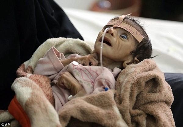 Trước lúc qua đời, Udai chỉ nặng 2,4kg dù đang 5 tháng tuổi
