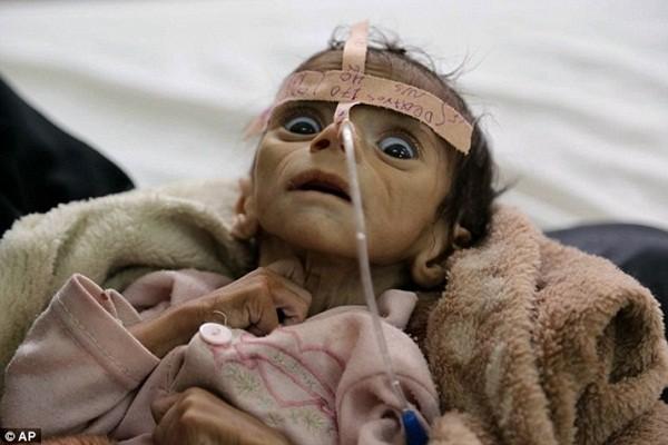 Hình ảnh đau đớn của Udai tại bệnh viện Al-Sabeen trước khi bị trả về vì suy dinh dưỡng nặng