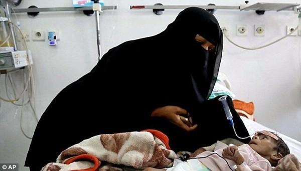 Mẹ của Udai chăm sóc cậu bé trong bệnh viện, 2 ngày trước khi cậu qua đời