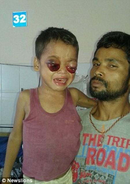 Sagar được đưa đến bệnh viện trong tuần trước vì tình trạng hiếm gặp của mình