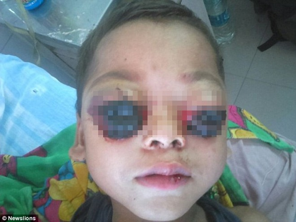 Các bác sĩ tại bệnh viện cũng bối rối vì căn bệnh hiếm gặp của cậu bé
