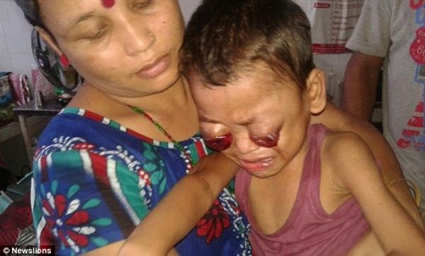 Bi kịch đau lòng của bé trai 3 tuổi có đôi mắt ếch đỏ ngầu ảnh 4