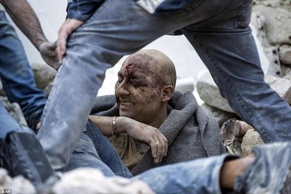 Một người đàn ông bị chôn vùi trong tư thế đứng, may mắn sống sót