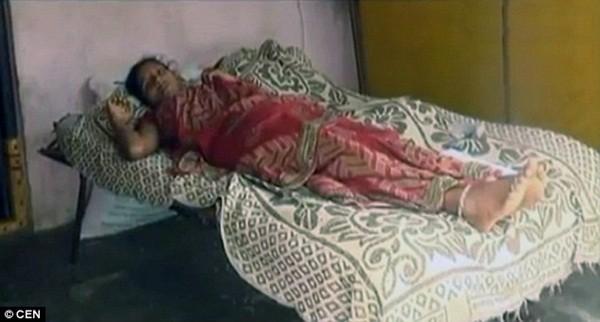 Girija bị bỏng 30% cơ thể vì sự tàn nhẫn và thiếu hiểu biết của mẹ chồng