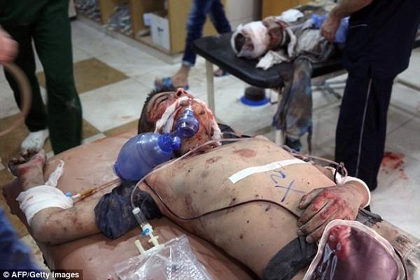 Một cậu bé nằm chờ điều trị y tế sau khi bị trúng không kích
