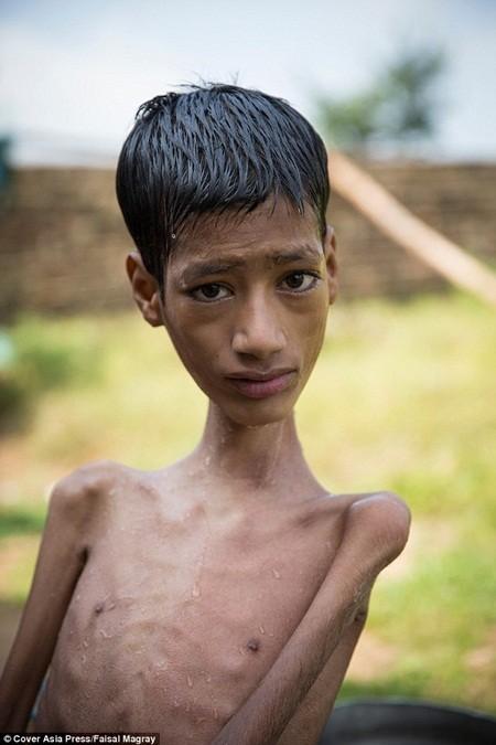 Cậu bé cổ lệch 180 độ qua đời sau 8 tháng phẫu thuật
