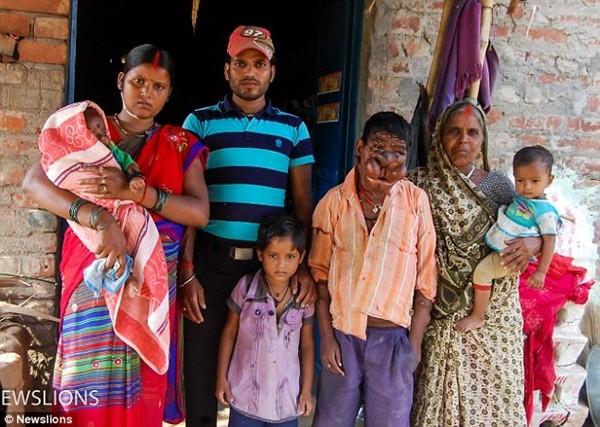 Cậu bé Ấn Độ khốn khổ vì bị hàng trăm khối u nổi trên cơ thể
