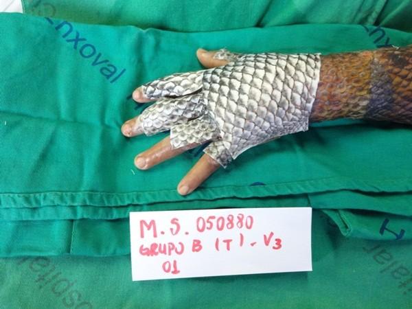 Người phụ nữ được chữa bỏng bằng da cá rô phi