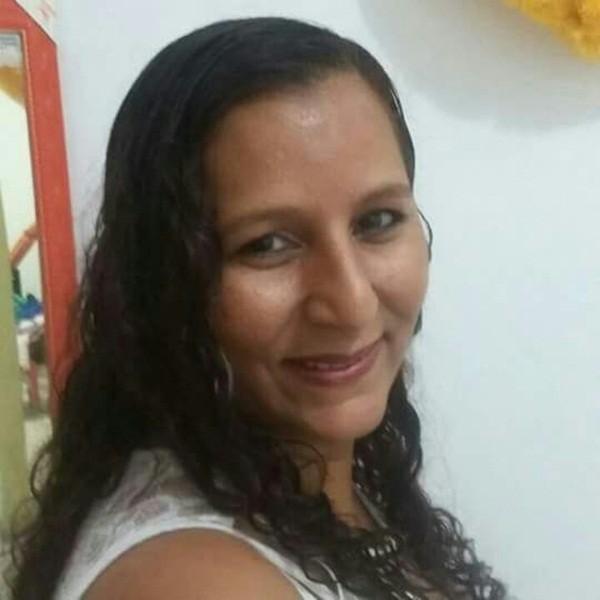 Cô Maria Ines bị bỏng nặng do gặp tai nạn khi làm việc trong nhà hàng