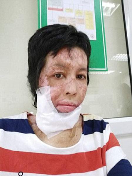 Cô Nuankhul đã trải qua các cuộc phẫu thuật cổ, mặt
