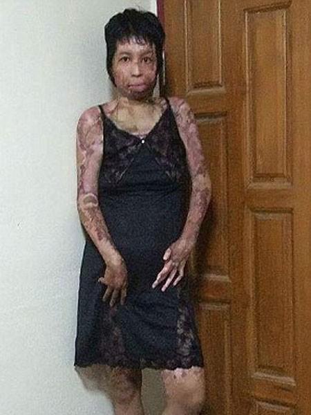 Cô bị bỏng nặng mặt và toàn thân
