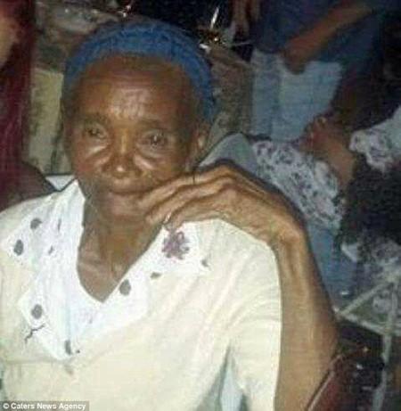 Cụ bà 84 tuổi qua đời vì 500 vết ong đốt vẫn còn nguyên ngòi trên da ảnh 2