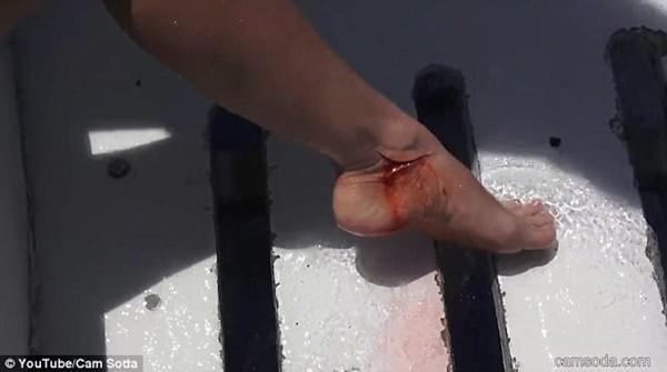 Vết thương trên chân của cô gái