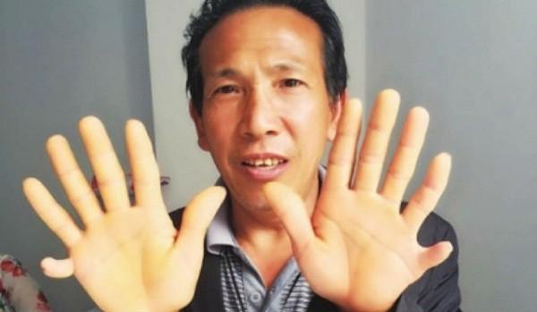 Bố của Vương Khai Luyện bị thừa ngón tay