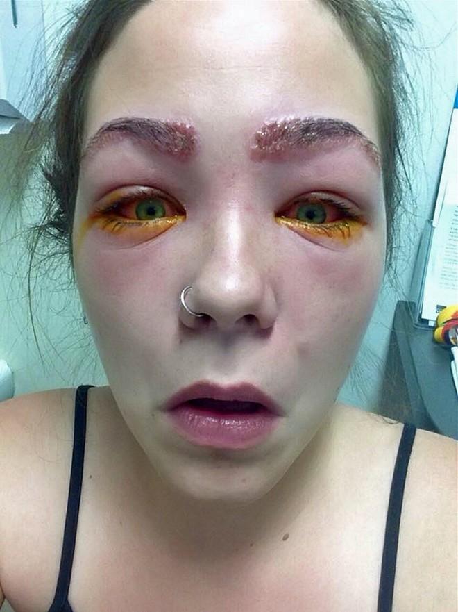 Tylah Durie đau đớn vì vùng mắt sưng đỏ
