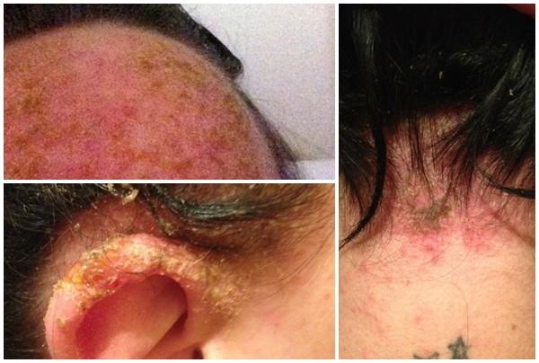 Hậu quả đau đớn do dị ứng thuốc nhuộm tóc của cô Williams