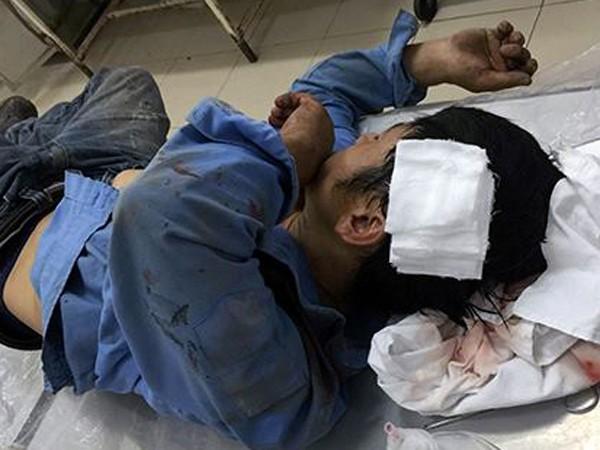 Một trong số công nhân bị trọng thương đang phải điều trị tại bệnh viện